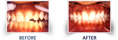Composite Filling (Tooth Colored Filling)