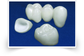 All porcelain dental crowns(Zirconia) (CAD CAM)