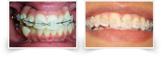 ceramic braces at smile please