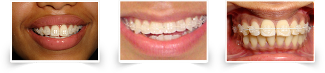 Mono-crystalline ceramic braces at Smile Please Dental Clinic