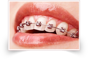 Best Metal Braces at Smile Please, Affordable braces