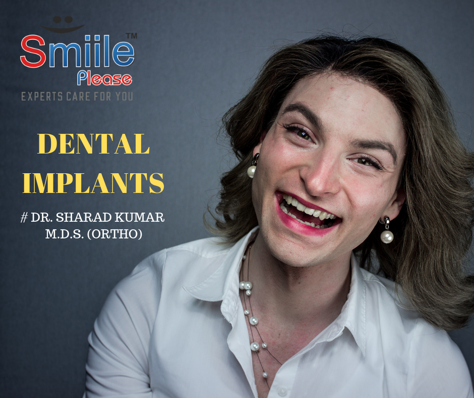dental implants at Smile Please Dental Clinic