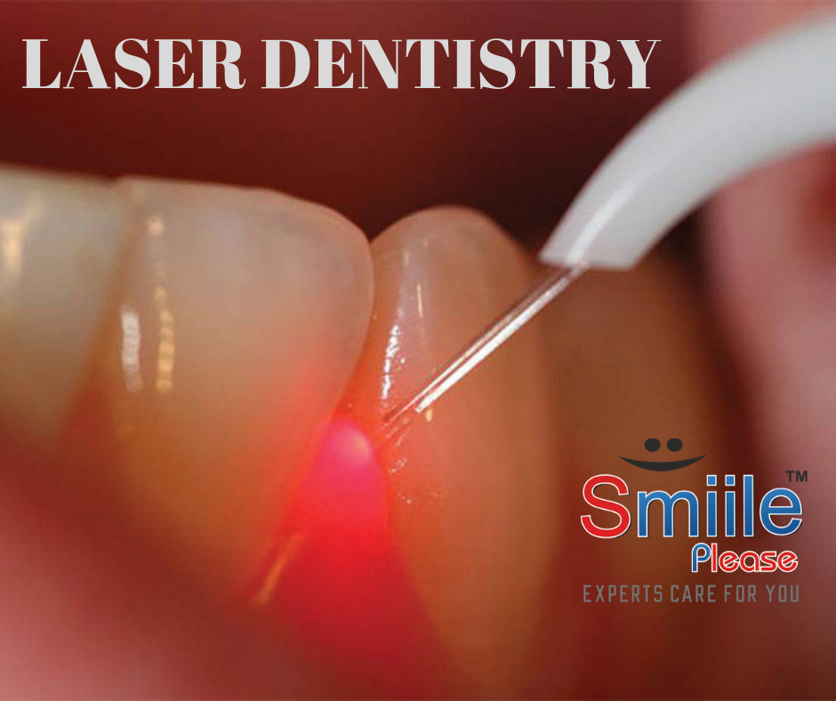 BEST DENTAL CLINIC IN VASHI WITH LASER TREATMENTS AVAILABLE. SMILE PLEASE DENTAL CLINIC VASHI, BEST BRACES.