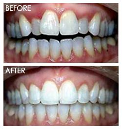 orthodontic Smile2