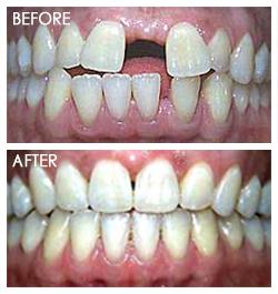 orthodontic Smile3
