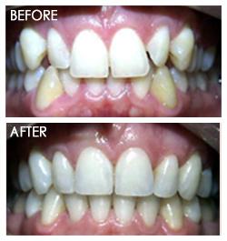 orthodontic Smile 4