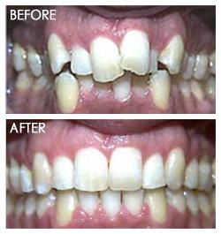 orthodontic Smile 5