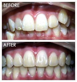 orthodontic Smile 6