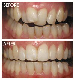 orthodontic Smile 7